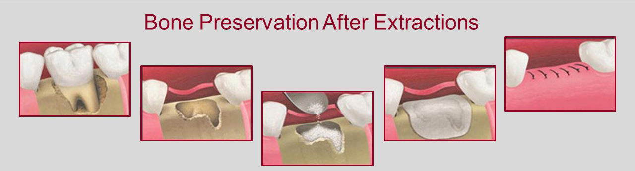Extractions Aria Dental Mission Viejo Ca