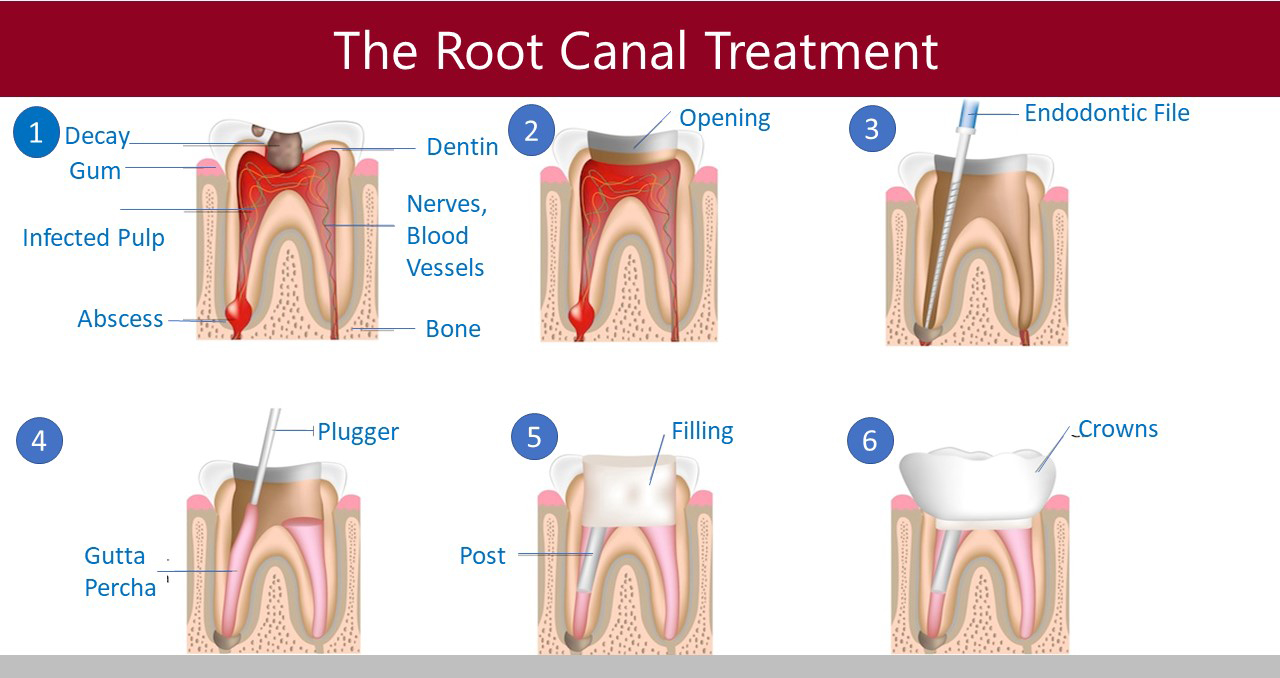Root Canal Therapy - Aria Dental | Mission Viejo CA