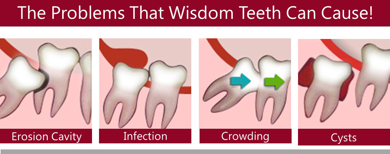 Wisdom Teeth - Aria Dental | Mission Viejo CA