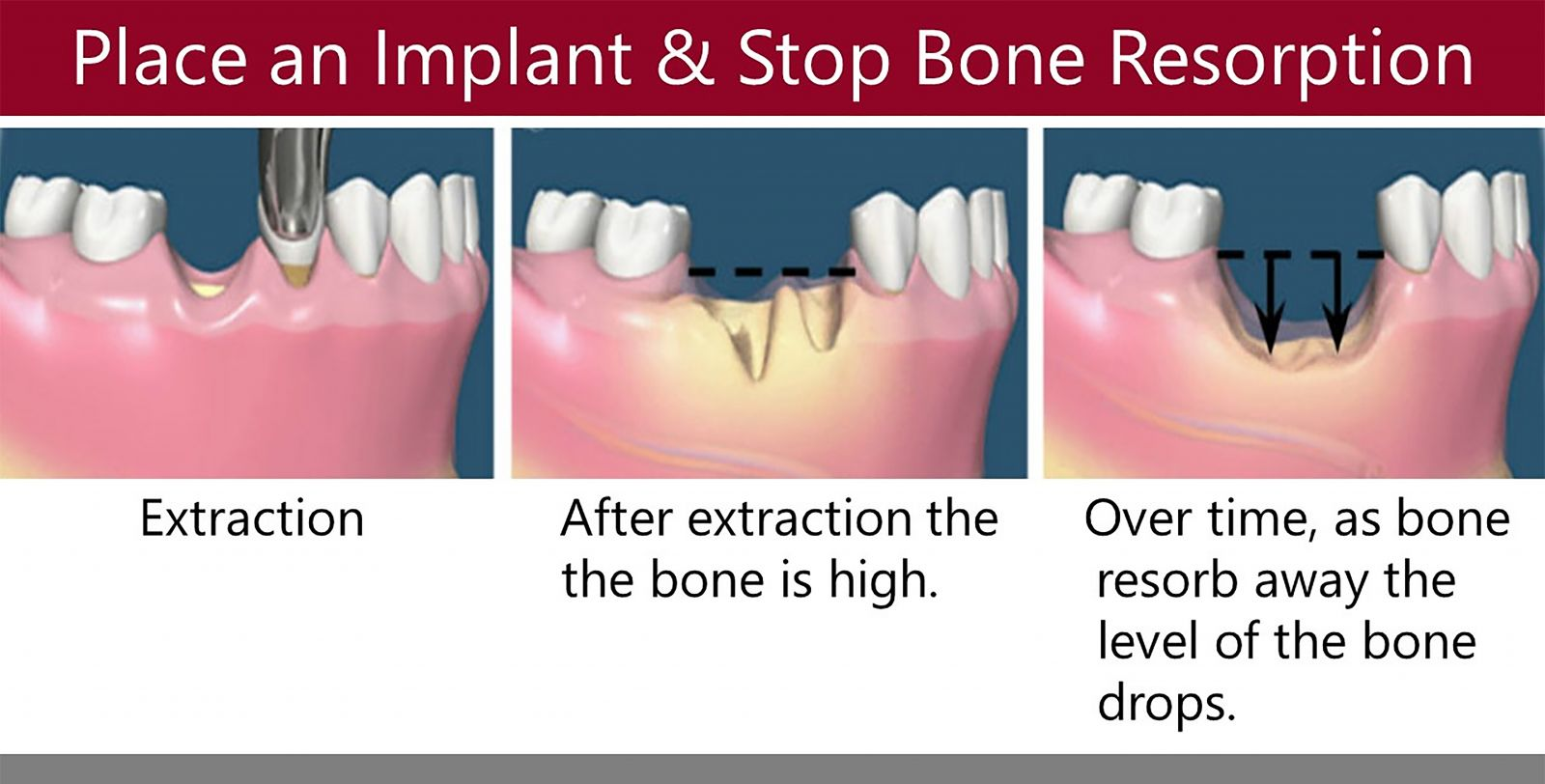 Your Go To Clinic For Dental Implants In Orange County Aria Dental