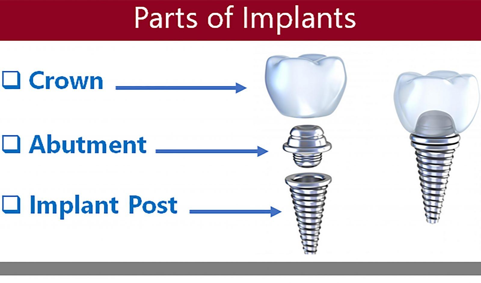 parts of implants