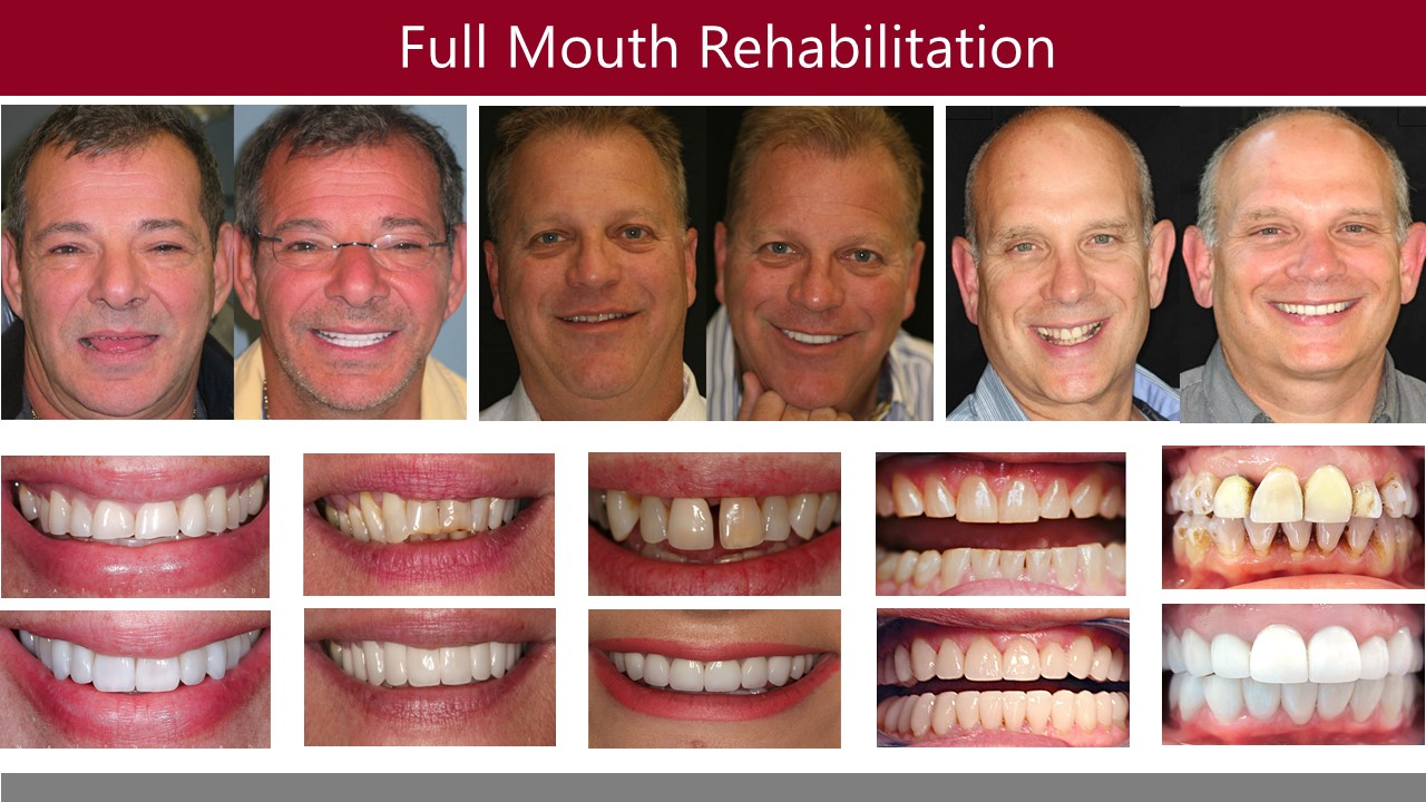 Full-Mouth Reconstruction - Aria Dental | Mission Viejo CA